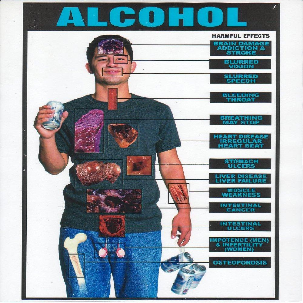 Efectele consumului exagerat de alcool.